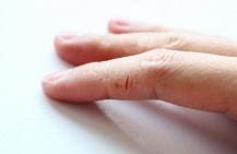 Трещины на пальцах рук: отчего и как лечить?