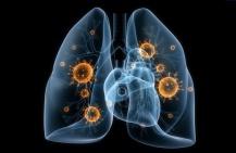 Симптомы и лечение воспаления лёгких
