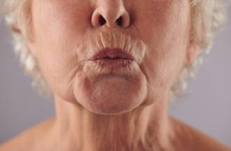 Как избавиться от кисетных морщин вокруг губ