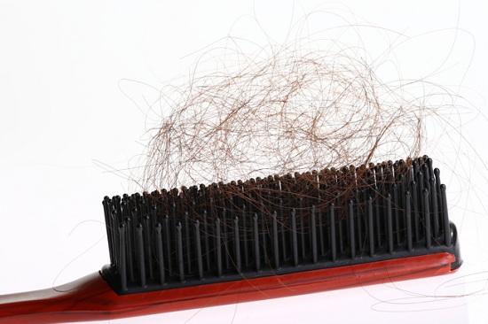 Голова чешется и выпадают волосы у женщин