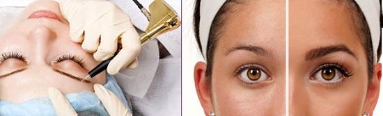 Татуаж волосковый метод