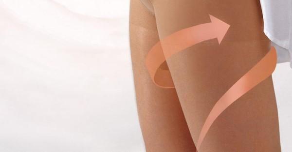 Профилактика варикоза вен на ногах при беременности