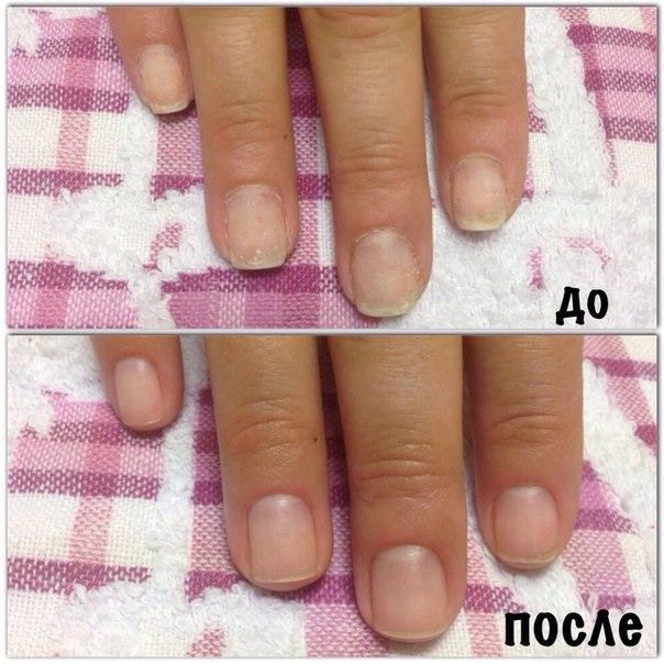 1 фото до и после аппаратного маникюра