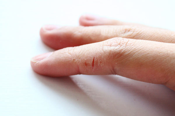 Когда трескается кожа на руках до крови