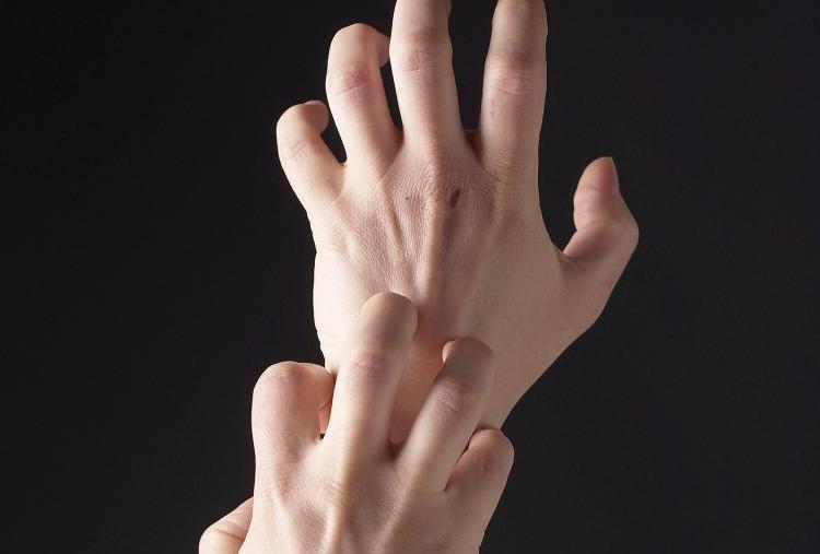 после родов кожа на руках трескается чешется краснеет что это