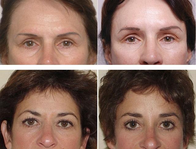 Результаты хирургических методов удаления морщин