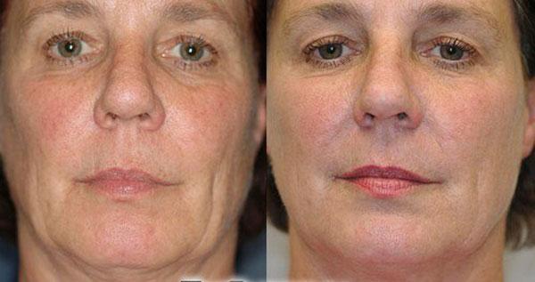 Фото до и после применения перекиси водорода