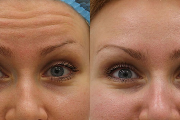 Ботокс до и после фото лоб глаза