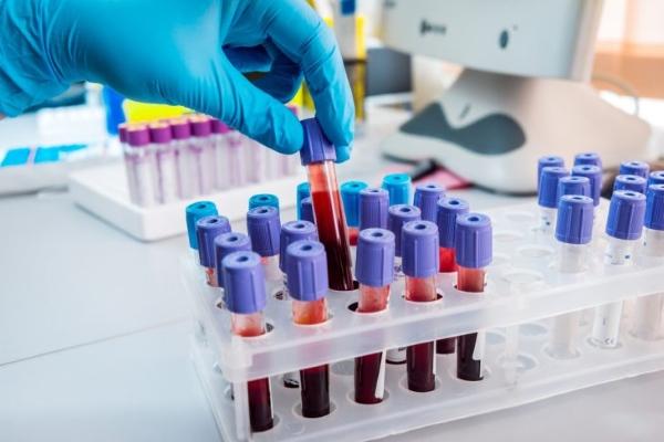 Анализы на тиреоглобулин
