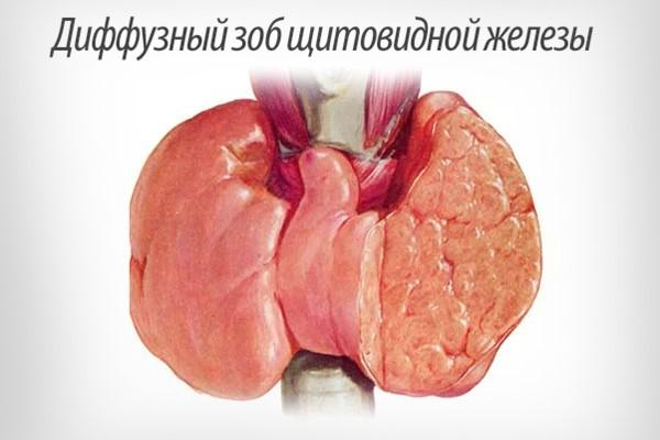Беременность при диффузном изменении щитовидной железы 195