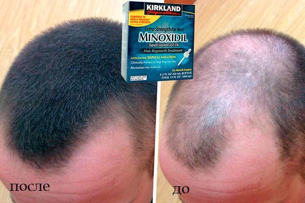 Миноксидил - средство для роста волос