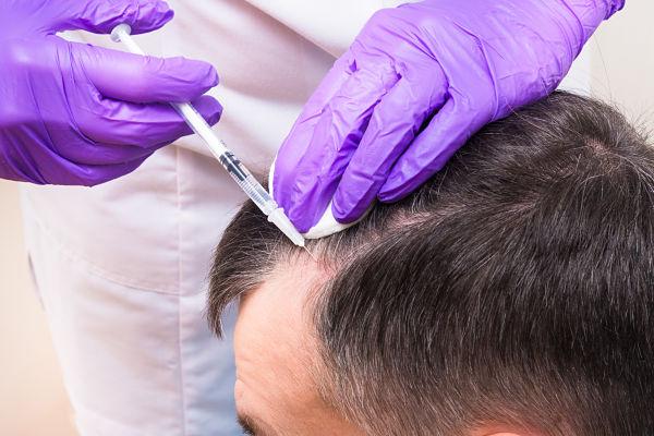 Методы трансплантации волос: особенности и отличия